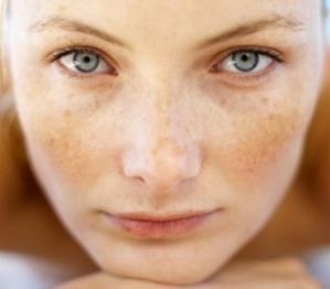 diamond microdermabrasion, microdermabrasion brisbane, treatment for hyper pigmentation