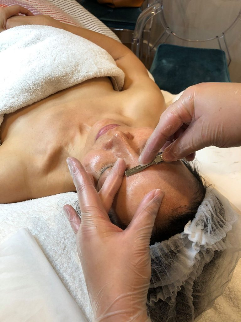 Dermaplaning In Brisbane