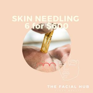 Skin Needling Brisbane