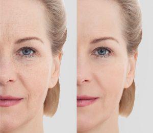 What is Cryoskin? Skin Rejuvenation + Fat-Freezing