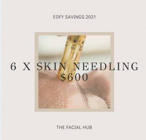 Skin needling promotion